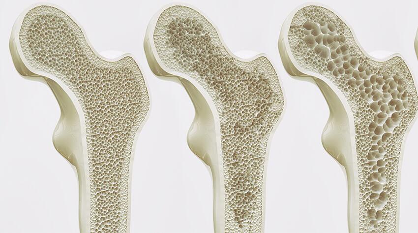 Osteoporosetherapie Muenchen - Osteoporosetherapie